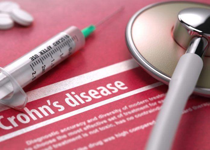 Symptoms of Crohns disease