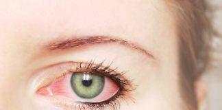 Types of Pink Eye