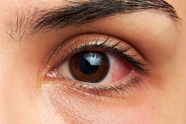 What Causes Pink Eye