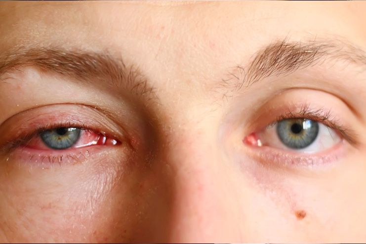 What Is Pink Eye And How Does It Look Like