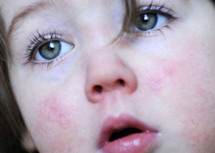 Remedies to Treat Skin Rashes