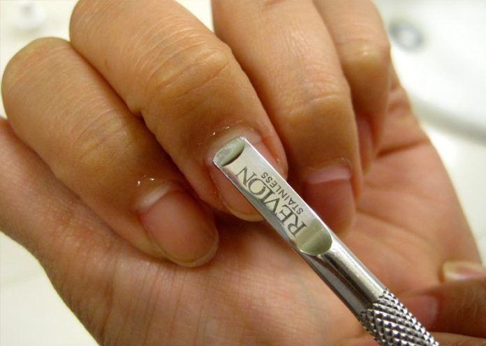 Preserve the Cuticles