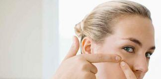 ayurvedic solutions to remove acne