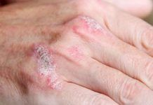 foods to cure psoriasis