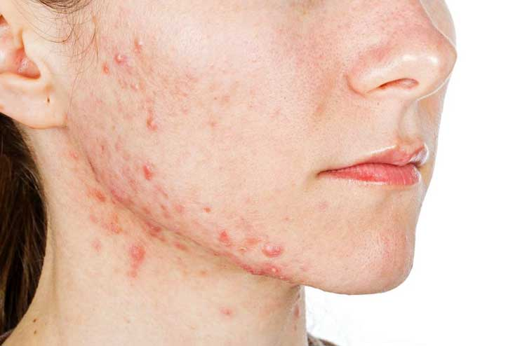 Benefits of Sunlight for Acne