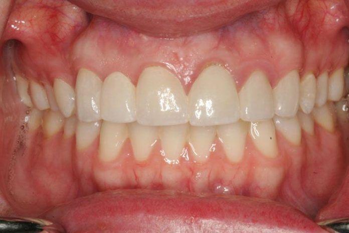 Red swollen tender gums