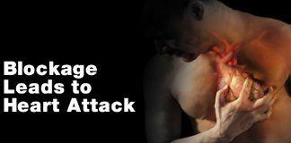 Heart disease risking factors