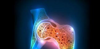 Diet and exercise for osteoporosis