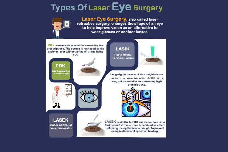laser eye surgeries