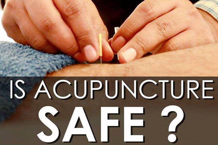Acupuncture safe
