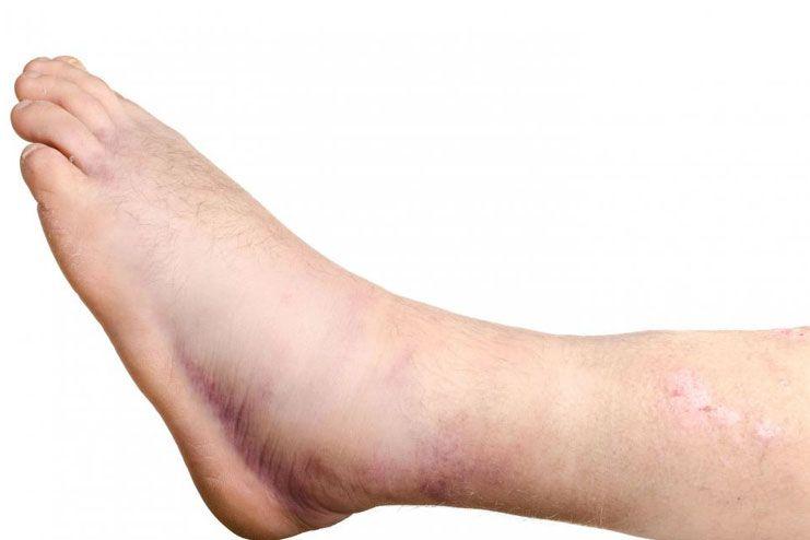 Swelling in legs