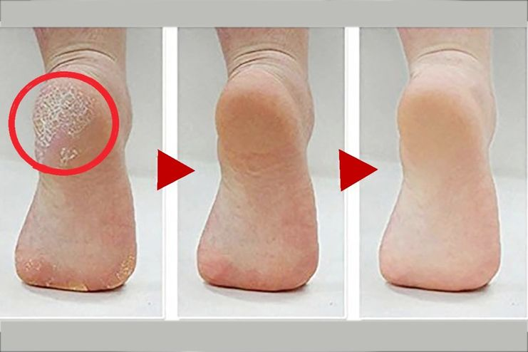 Aspirin removes calluses from feet