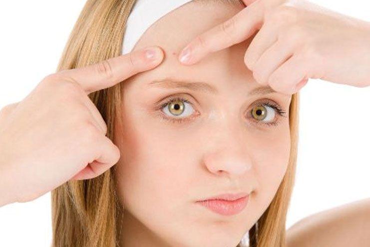 Removes acne