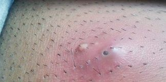 ingrown hair