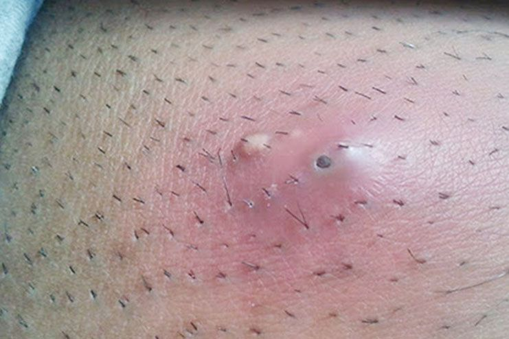 Causes Symptoms And Treatment Of Ingrown Hair