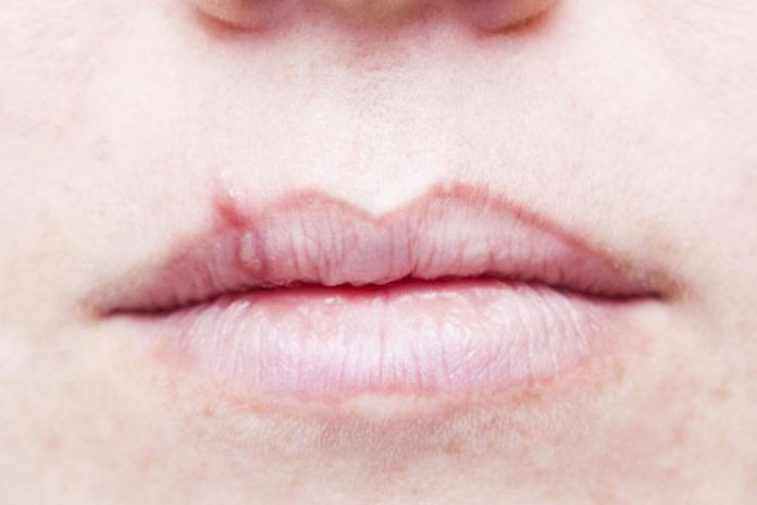 how to get rid of cold sores