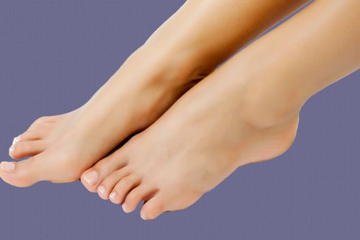 Treatment for cankles