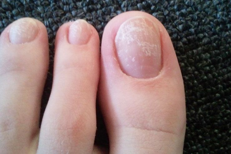 Diagnosis of white spots on nails
