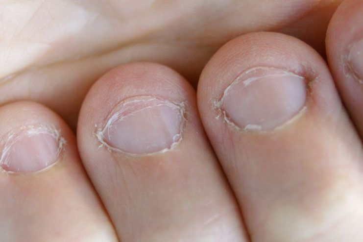 Treatment for white spots on nails
