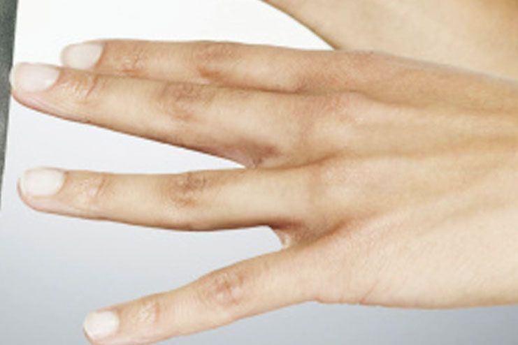 Prevention of white spots on nails