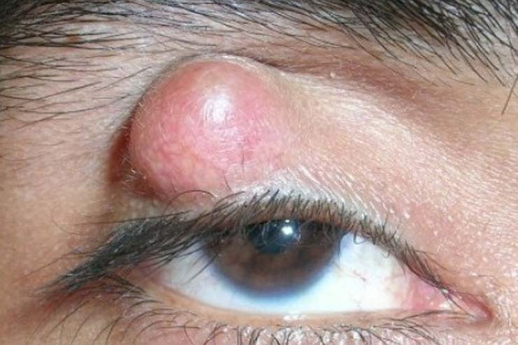 What is stye in eye