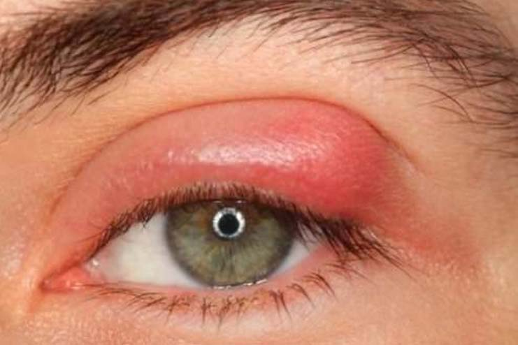 How to treat stye eye