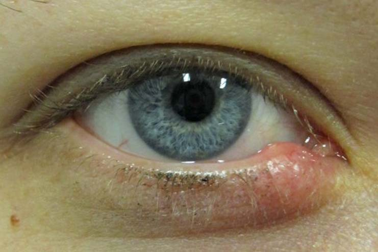 How do you prevent a stye on eye