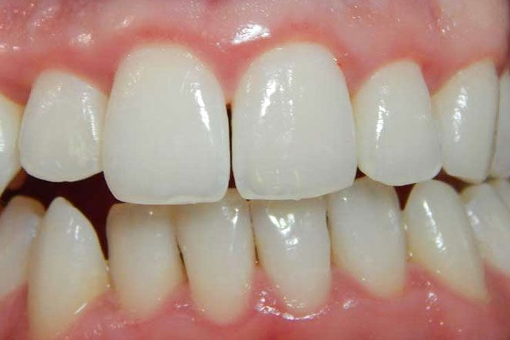 treat gingivitis naturally