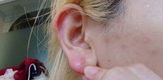 pimple in earlobe
