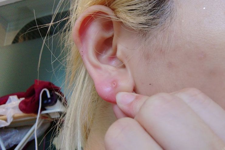 pimple in earlobe