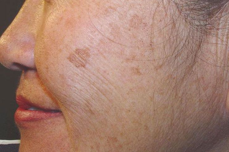 possible to prevent the age spots