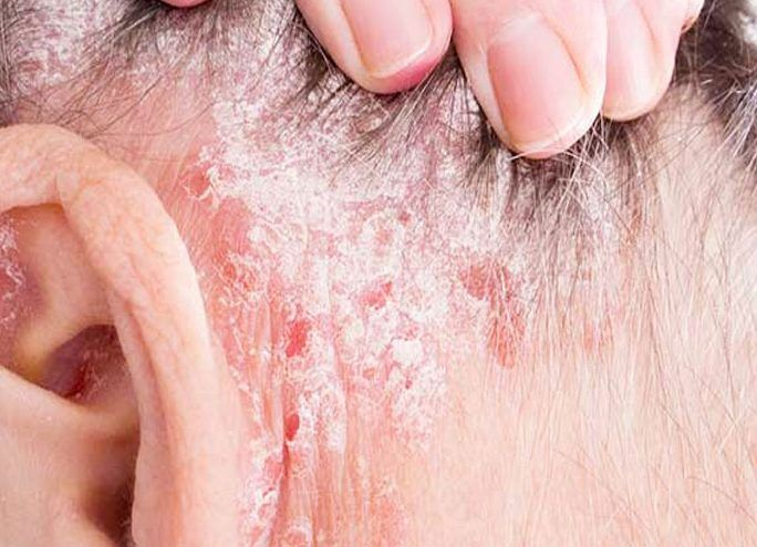Essential oil for psoriasis