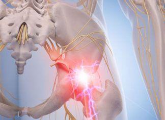 yoga for sciatica pain relief