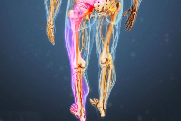 Symptoms of sciatica