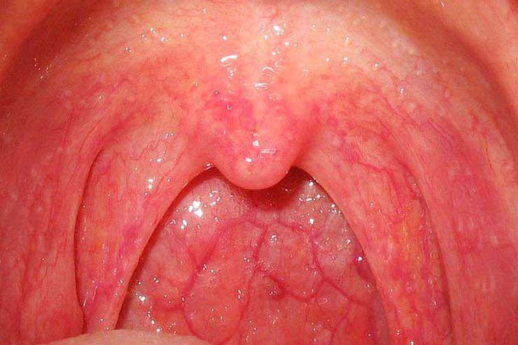 get strep throat