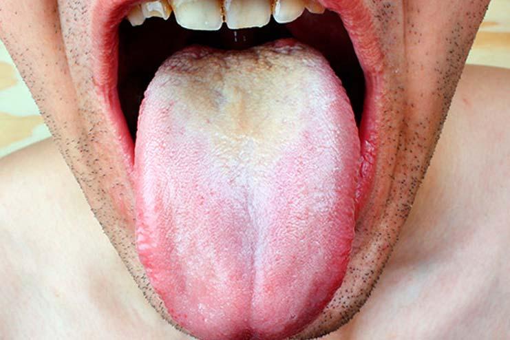Signs symptoms of tongue sores
