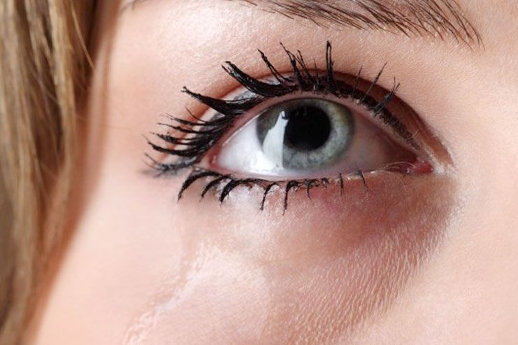 symptoms and signs of water eyes