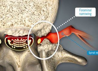 neural foraminal stenosis