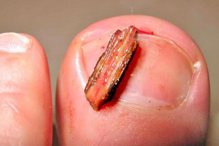 How To Get Rid of Ingrown Toenails