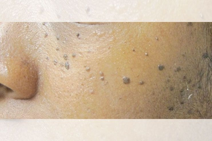 causes black spots on skin