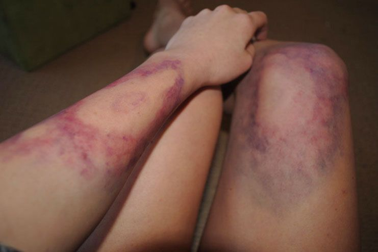 natural remedies to get rid of easy bruising