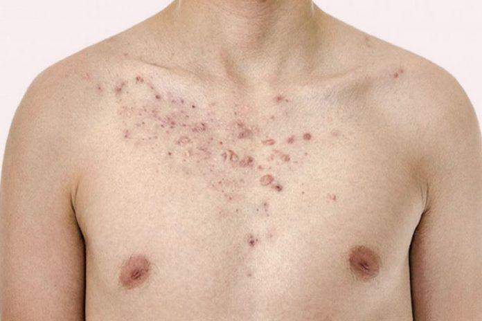 Chest acne