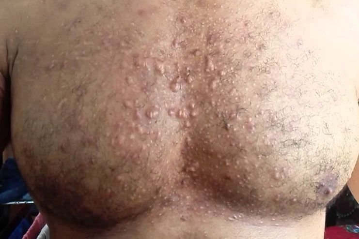 prevent chest acne