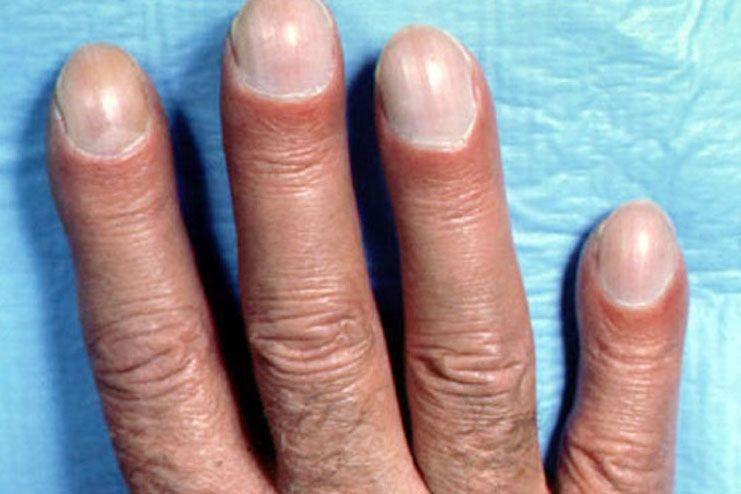 get rid of clubbed fingers