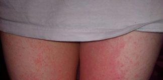 Rash-on-Inner-Thigh