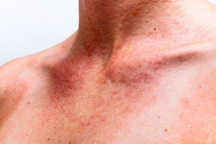 rash on neck