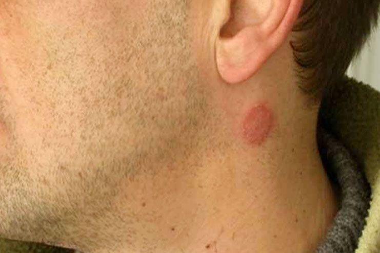 symptoms of rash on neck
