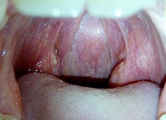white spots on throat