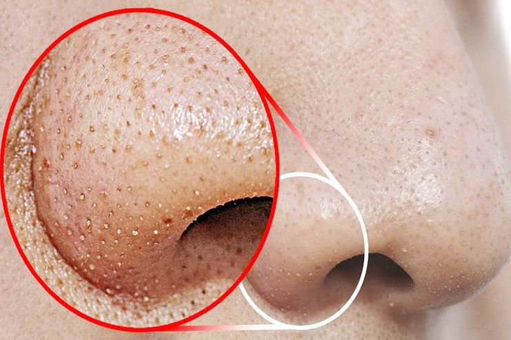 What Causes Blackheads on Nose
