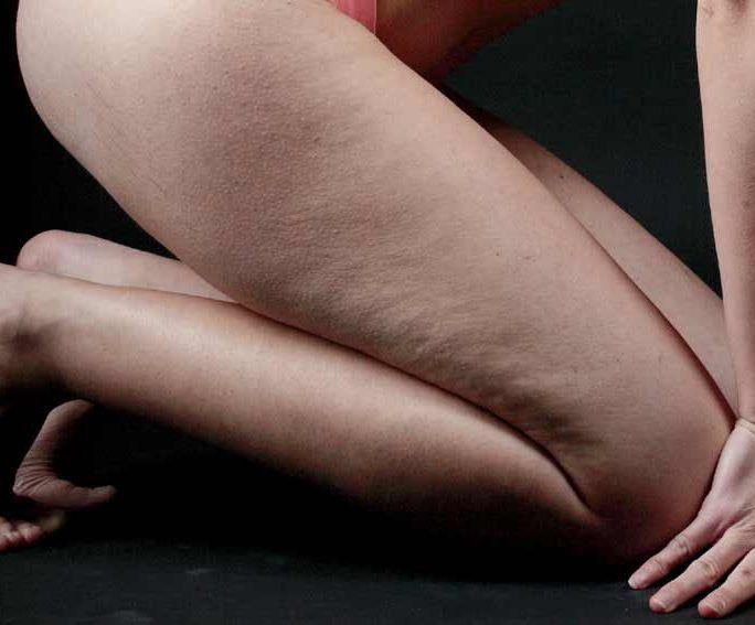 cellulite massager